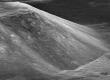 LRO сфотографировал оползень Южного массива